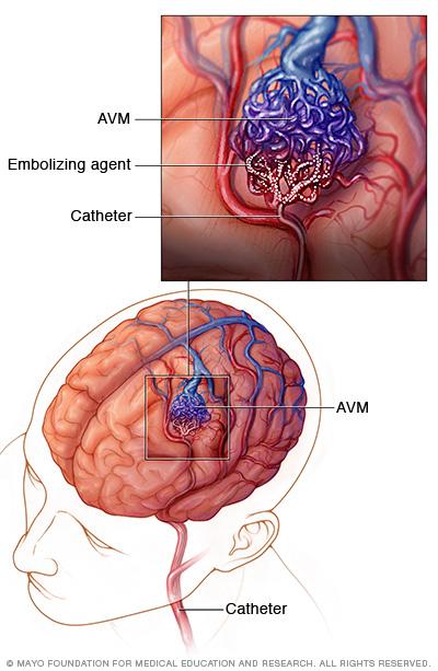 Image showing endovascular embolization