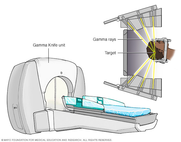 The gamma rays delivering radiation to the head.