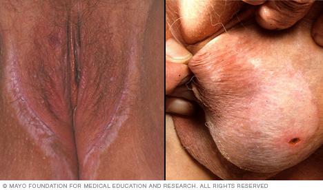 Lichen sclerosus in genital area