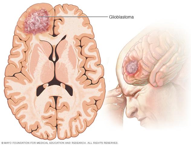 Glioblastoma brain tumor