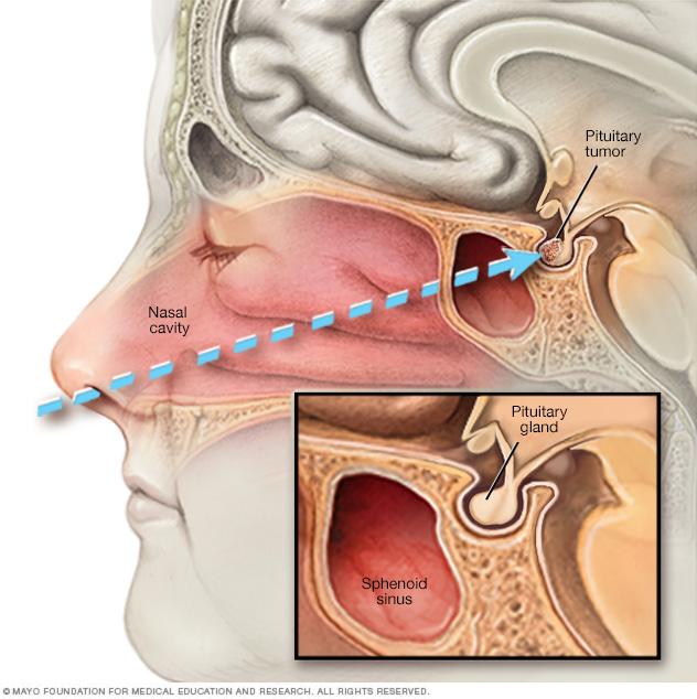 Transnasal transsphenoidal surgery