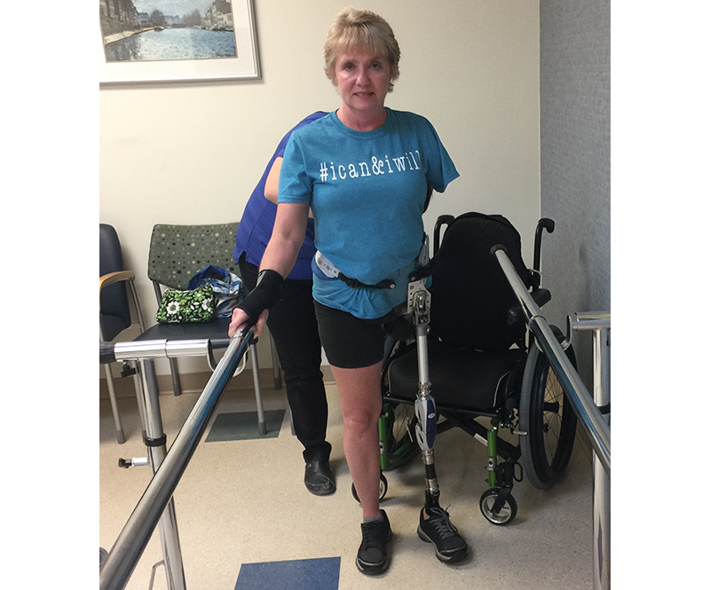 Laurie in rehab using new prostheses